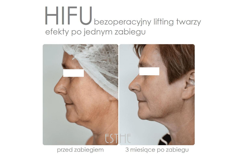 Jak powstrzymać grawitację? – poprawa owalu twarzy zHIFU