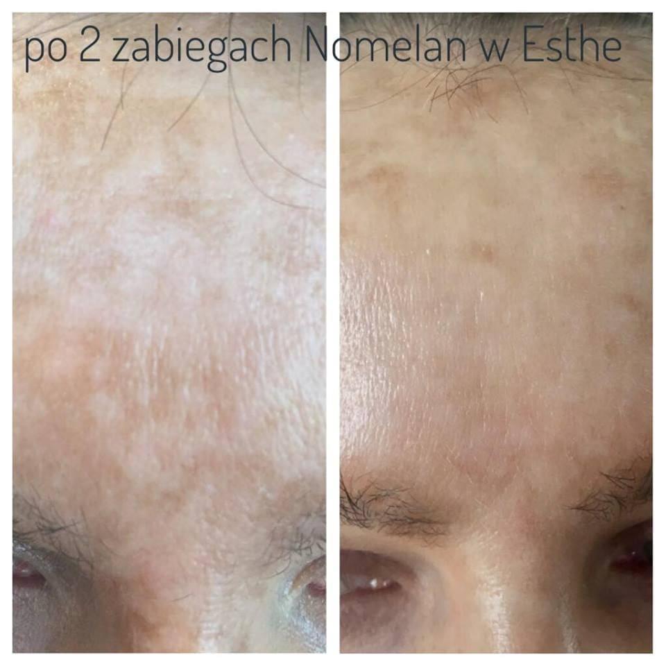 Blog - STOP przebarwieniom! 3 - Gabinet kosmetyczny ESTHE Lublin