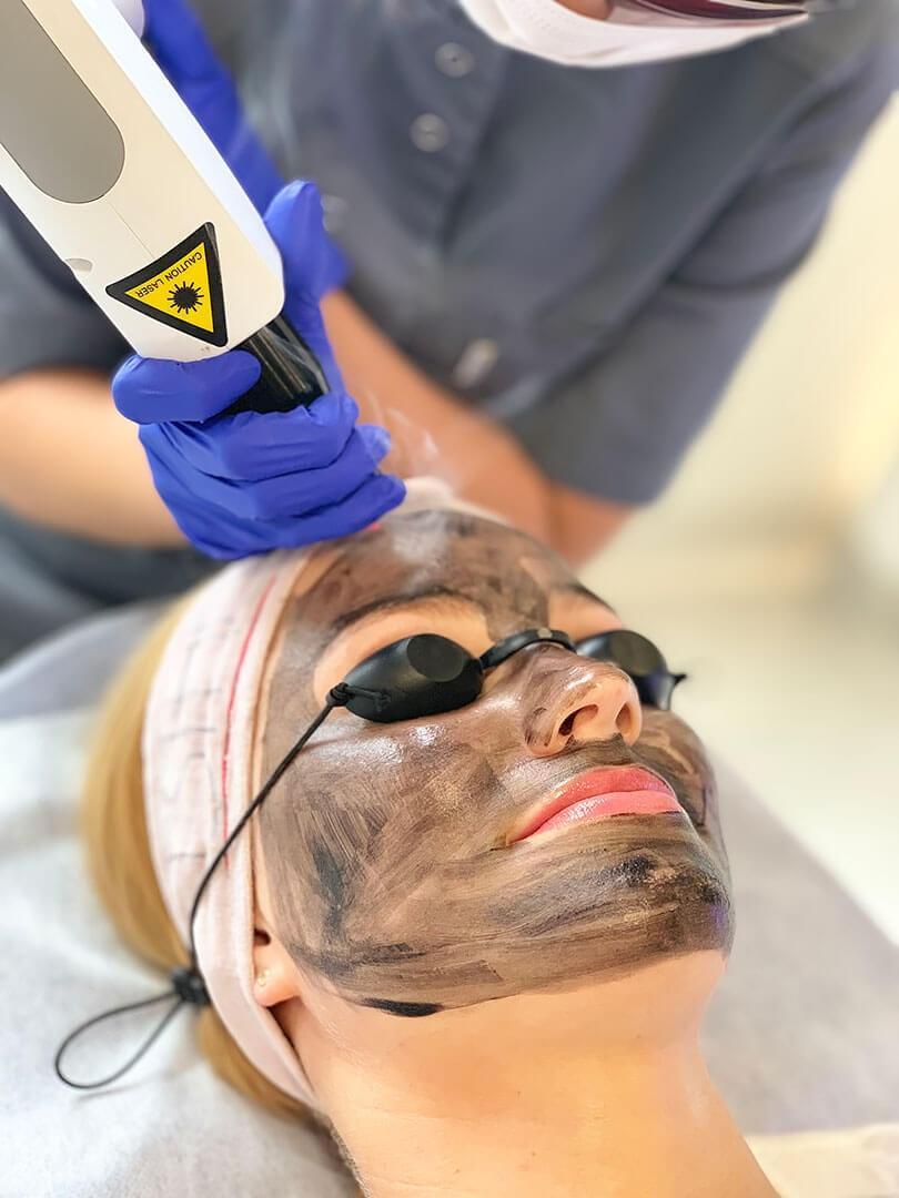 Kosmetyka twarzy - Black Doll laserowy peeling węglowy - gabinet kosmetyczny Esthe wLublinie