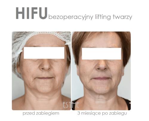 Kosmetyka twarzy HIFU ultradźwiękowy lifting twarzy 2 - gabinet kosmetyczny Esthe wLublinie