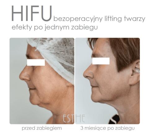 Kosmetyka twarzy HIFU ultradźwiękowy lifting twarzy - gabinet kosmetyczny Esthe wLublinie