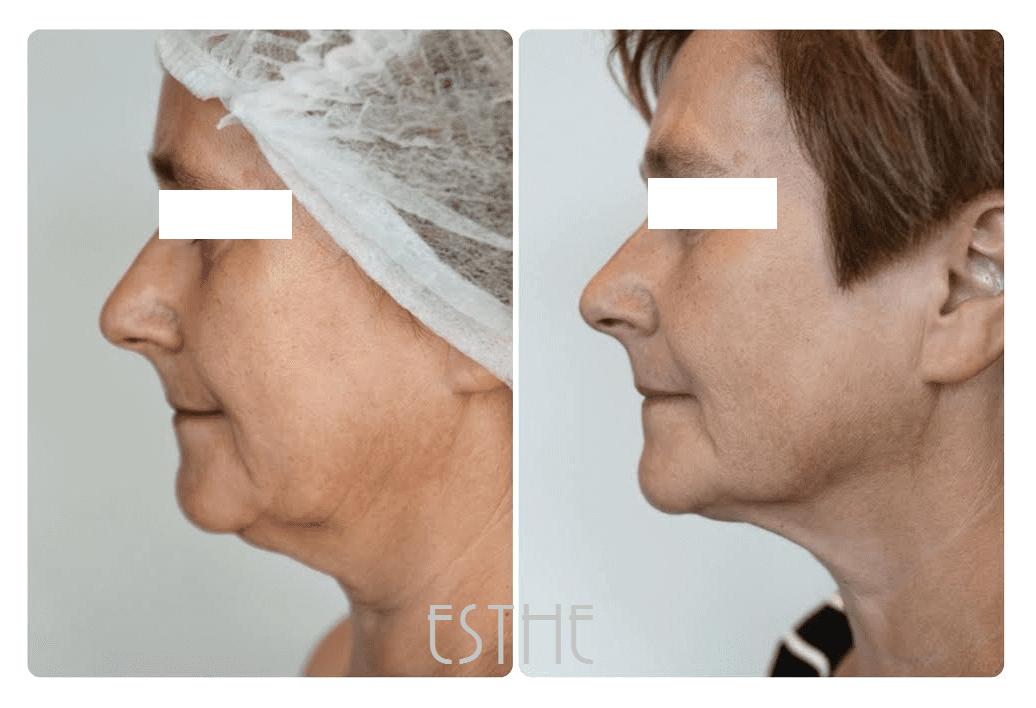 Kosmetyka twarzy HIFU ultradźwiękowy lifting twarzy - gabinet kosmetyczny Esthe w Lublinie