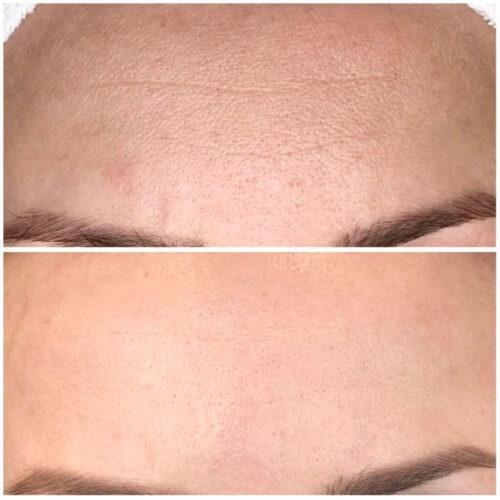 Kosmetyka twarzy - Indiba Deep Beauty 3 - gabinet kosmetyczny Esthe wLublinie